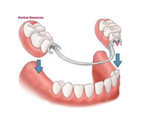 1.2 partial-dentures